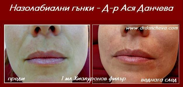 назолабиални гънки Д-р Ася Данчева