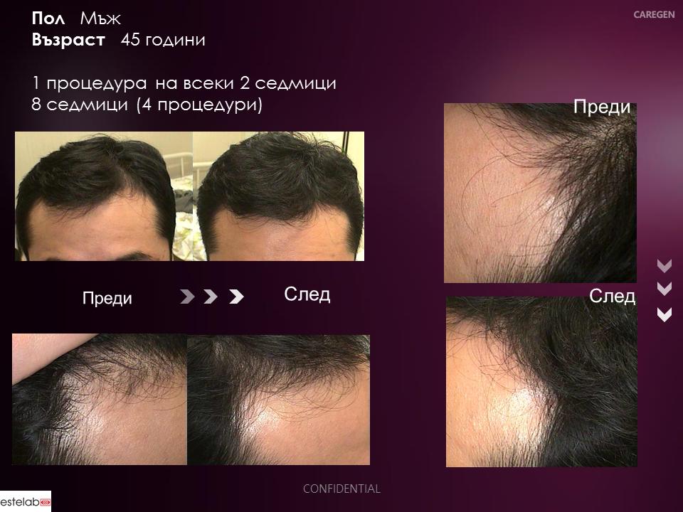 dr-cyj-hair-filler_men