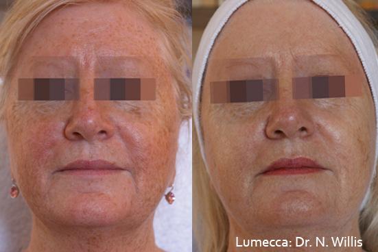 фотоподмладяване-skin-rejuvenation-dr-asya-dancheva
