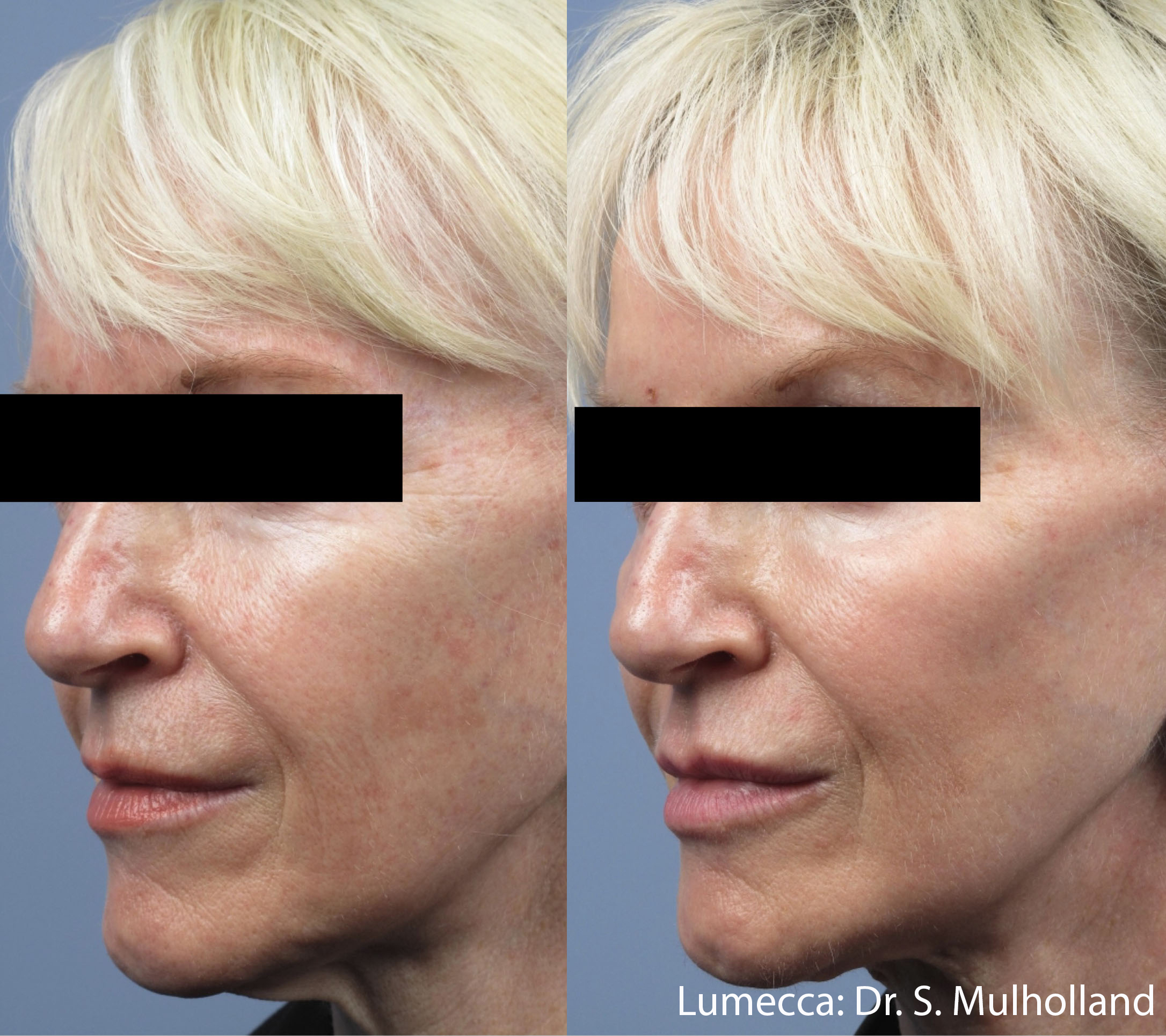 фотоподмладяване-skin-rejuvenation-dr-asya-dancheva