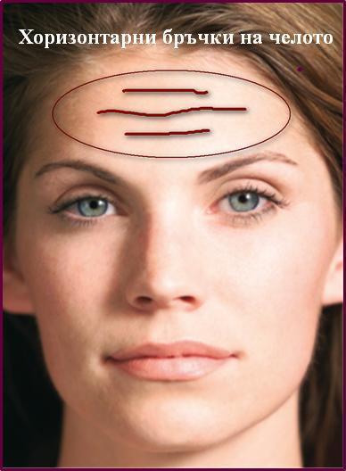 хоризонтални бръчки на челото Д-р Ася Данчева