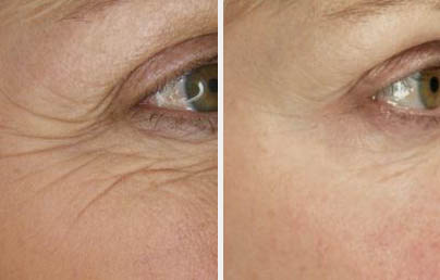 botox-before-after-crows-feet