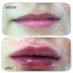 Увеличаване на устни с хиалуронова киселина-цена-снимки..