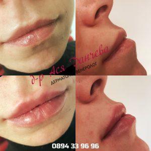 Перманентен грим устни русе