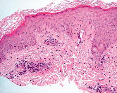 Какво трябва да знаете за псориазис на клепачите? - Psorilin
